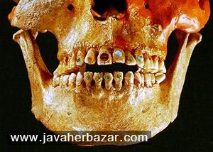 استفاده از سنگهای قیمتی در دندان مایاها
