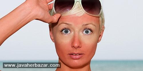 چند راه حل برای درمان آفتاب سوختگی