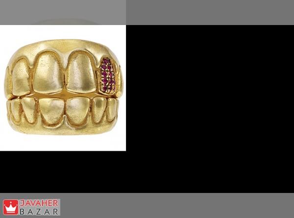مزایا و معایب استفاده از طلا در دندانپزشکی